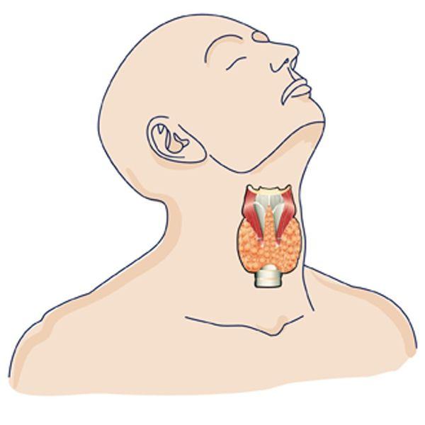Alrededor del 20% de los afectados por vitíligo tienen una enfermedad tiroidea