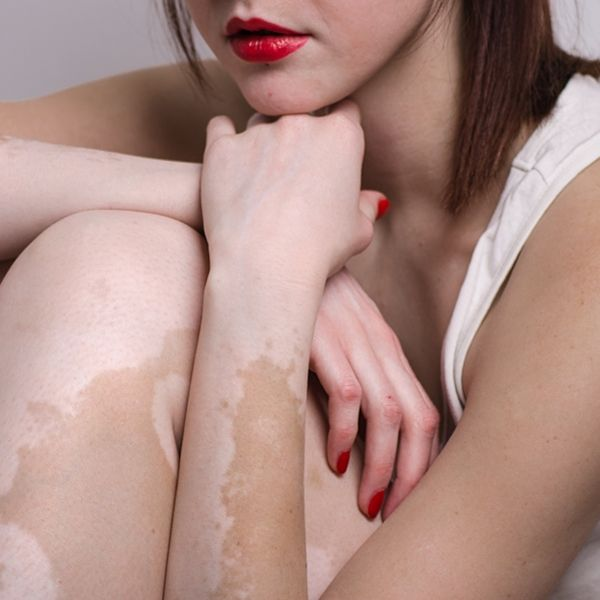 Vitiligo, definition, causes and types