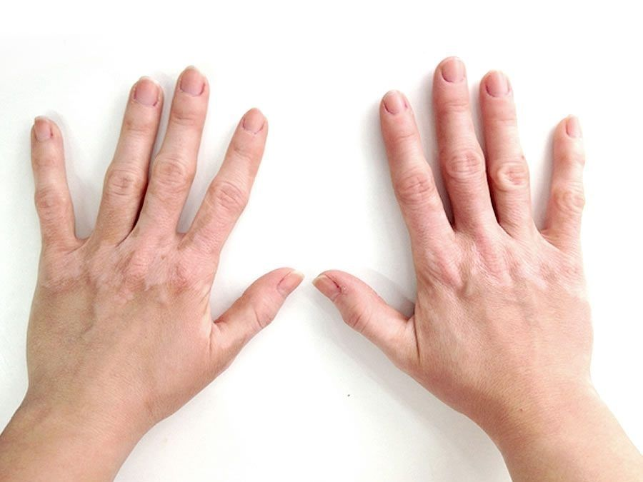 Tratamiento del vítíligo: opciones