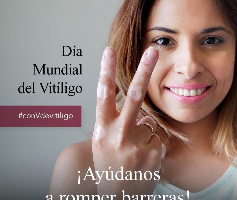 Con V de vitíligo, Día Mundial del Vitíligo 2017