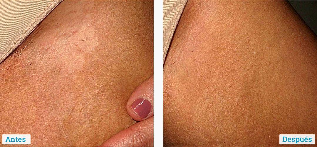resultados-tratamiento-del-vitiligo-01