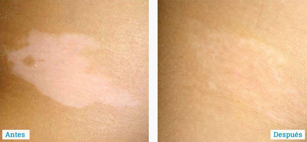 resultados-tratamiento-del-vitiligo-03