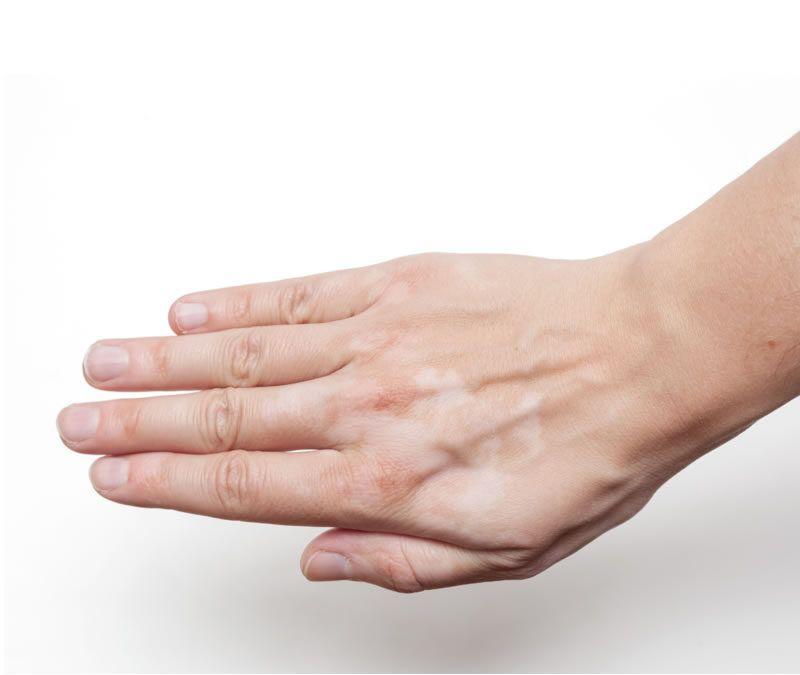 La superoxido dismutasa y su papel en el tratamiento del vitíligo