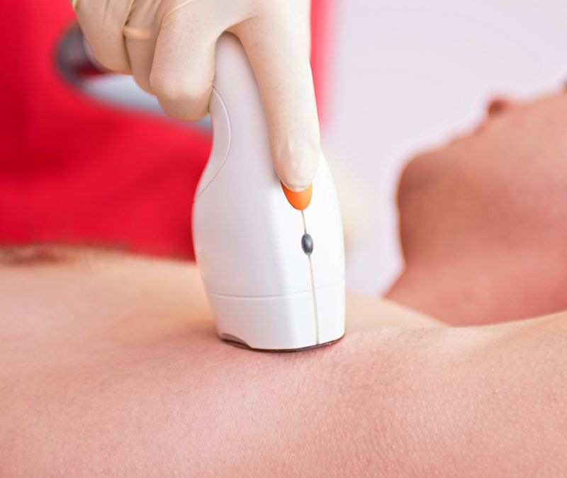How to treat hypopigmentation produced by laser burns