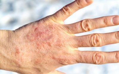 Uso de la fototerapia para el tratamiento de la psoriasis