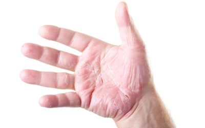 Dermatitis en niños y su tratamiento con fototerapia